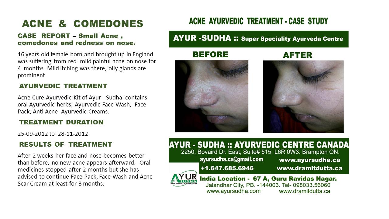 Acne in teenage Ayurvedic Treatment in Brampton, Canada