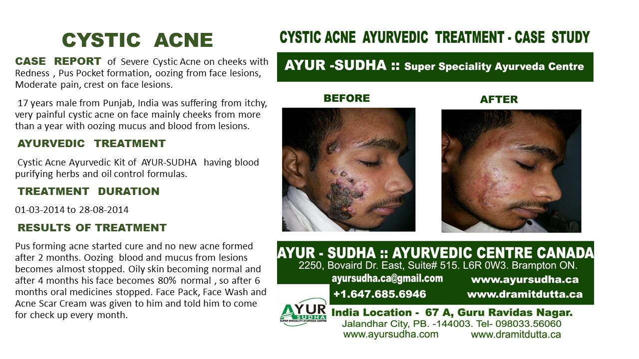 Cystic Acne Ayurvedic Natural Treatment in Brampton, Canada
