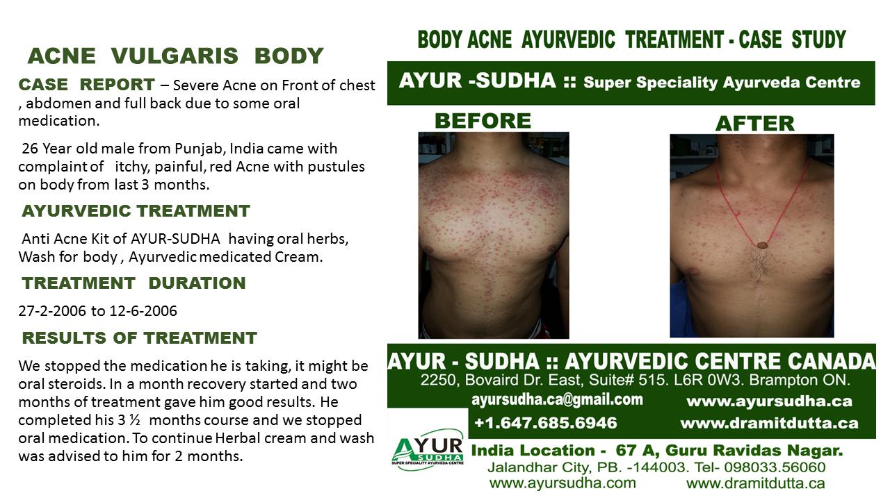 Body Acne Ayurvedic treatment Brampton, Canada
