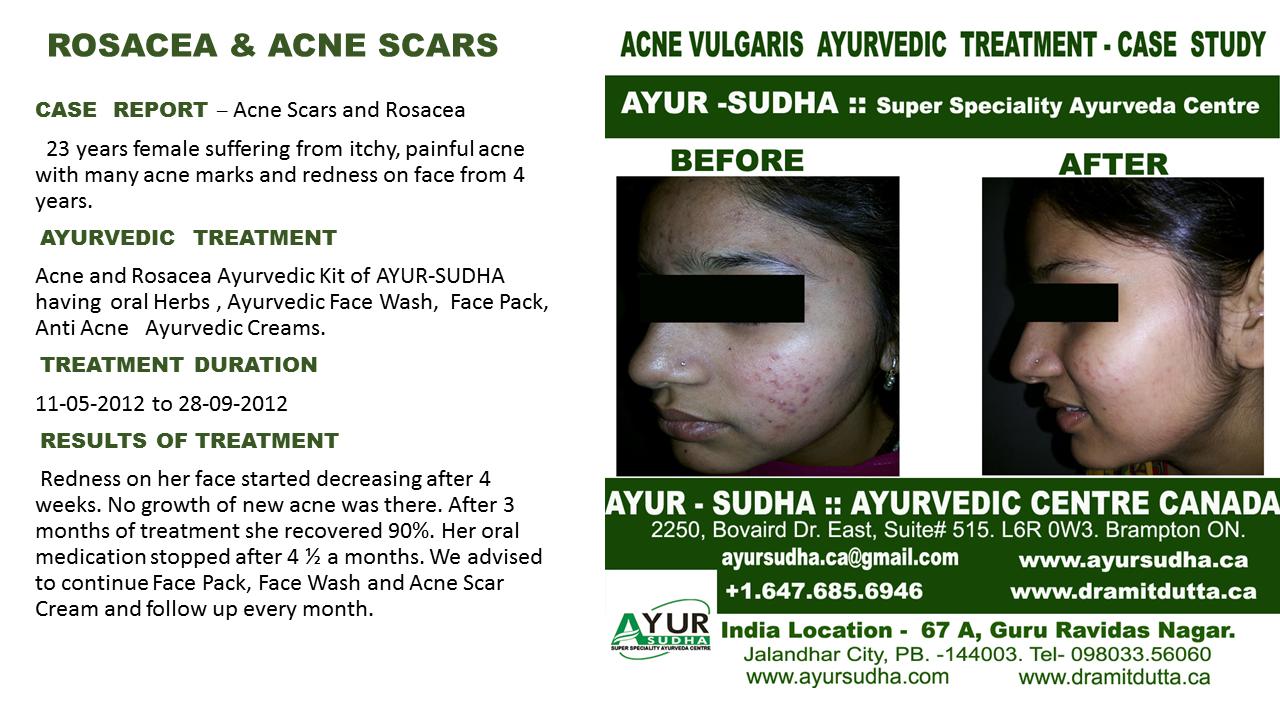 Acne Skin Ayurvedic treatment Brampton, Canada