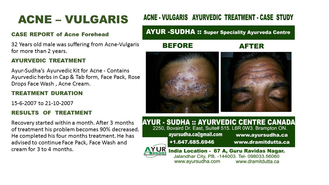 Acne Natural Ayurvedic Treatment Canada