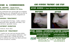 Acne in teenage Ayurvedic Treatment in Brampton, Canada