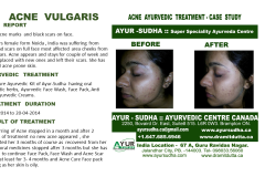 Natural Acne Vulgaris Ayurvedic Treatment Canada
