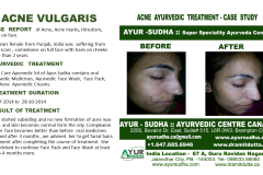 Acne Ayurvedic Treatment. Skin Clinic Canada