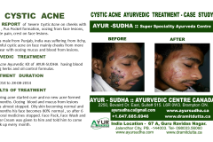 Cystic Acne Ayurvedic Natural Treatment in Brampton, Canada