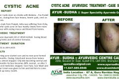 Acne Ayurvedic Natural Treatment in Brampton, Canada