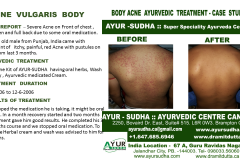 Body Acne Ayurvedic treatment Brampton, Canada