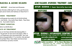 Acne Skin Ayurvedic treatment Brampton, Canada