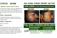 Skin treatments. Acne Vulgaris Ayurvedic Treatment Brampton
