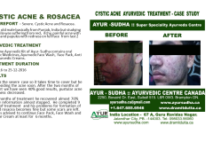 Cystic Acne Ayurvedic Natural Treatment in Canada