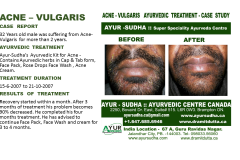 Acne Ayurvedic Treatment Canada