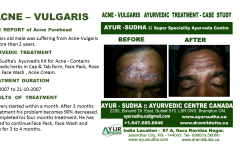 Acne Natural Ayurvedic Treatment Canada