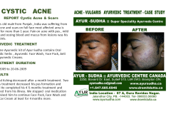 Cystic Acne Natural Ayurvedic Treatment Canada