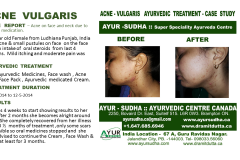 Acne Scars Ayurvedic Treatment, Brampton Canada