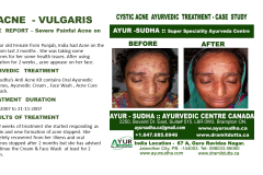 Acne Skin Ayurvedic Treatment GTA, Canada
