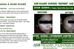 Acne Herbal Ayurvedic treatment Brampton, Canada
